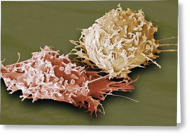 Macrophage Greeting Cards - Macrophage Cells, Sem Greeting Card by Steve Gschmeissner