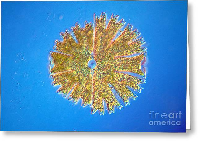 Desmid Greeting Cards - Micrasterias Greeting Card by Michael Abbey and Photo Researchers
