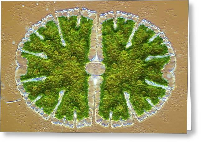 Microsterias Green Alga, Light Micrograph Greeting Card by Frank Fox