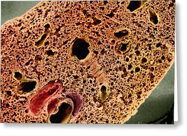 Mouse Lung, Sem Greeting Card by Science Source