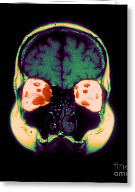 Abnormal Greeting Cards - Mri Of Graves Disease Greeting Card by Medical Body Scans