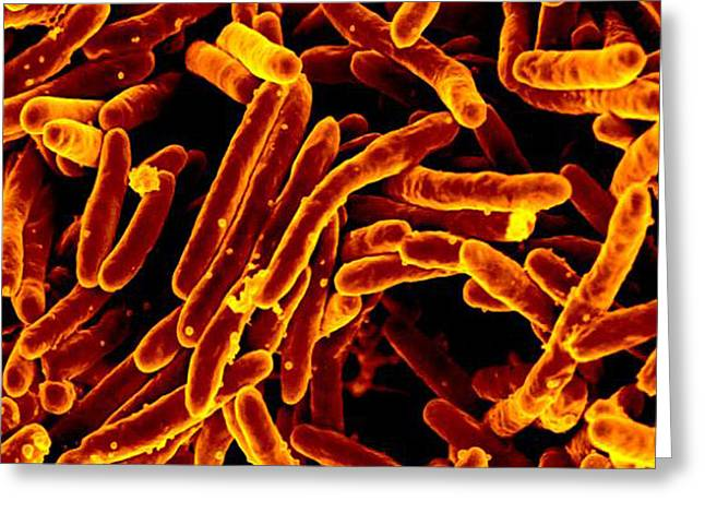 Mycobacterium Tuberculosis Bacteria, Sem Greeting Card by Science Source
