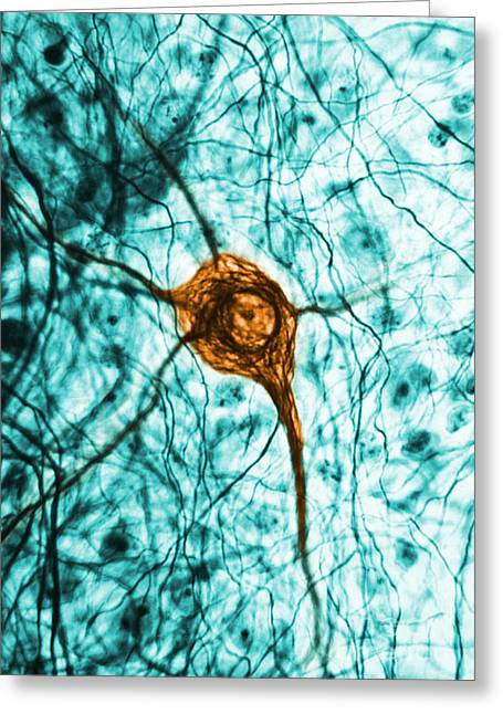 Mammalian Greeting Cards - Neuron, Tem Greeting Card by Science Source