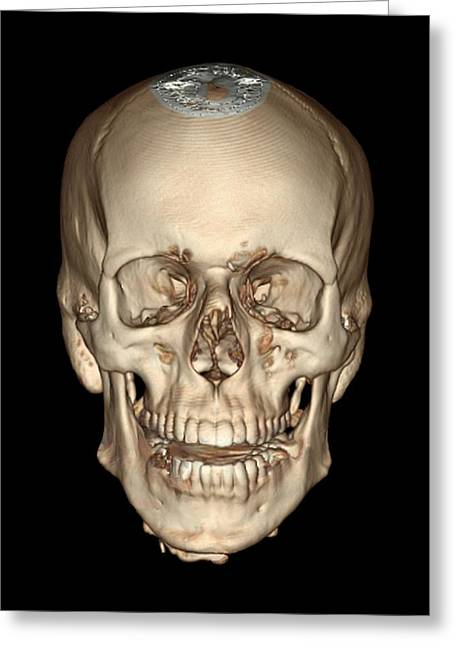 35-39 Years Greeting Cards - Normal Skull, 3d Ct Scan Greeting Card by Zephyr