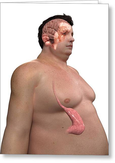 Eating Disorders Greeting Cards - Obese Mans Stomach, Artwork Greeting Card by Sciepro