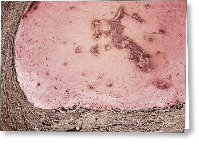 Stein Greeting Cards - Ovarian Cyst, Sem Greeting Card by Steve Gschmeissner
