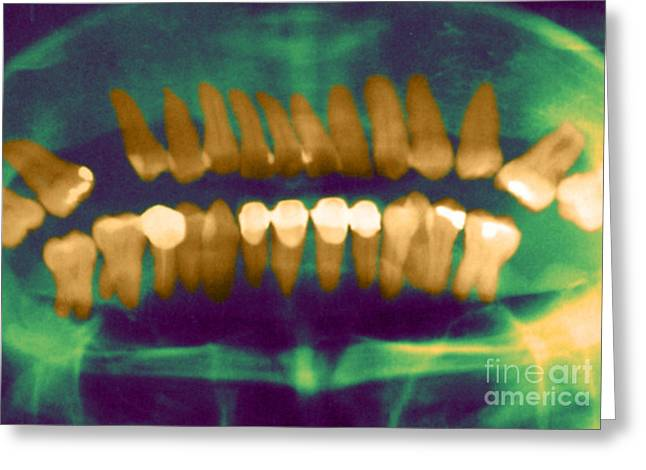 Diagnostic Imaging Greeting Cards - Panoramic Dental X-ray Greeting Card by Science Source