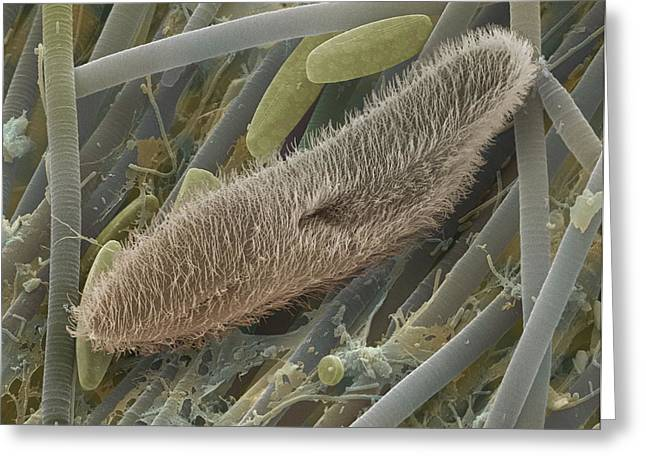 Paramecium Sp. Protozoan, Sem Greeting Card by Power And Syred