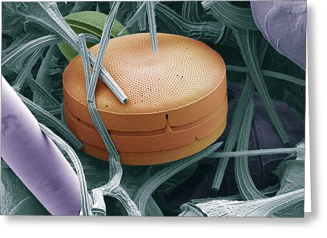Photosynthetic Greeting Cards - Planktonic Diatom Alga, Sem Greeting Card by Steve Gschmeissner