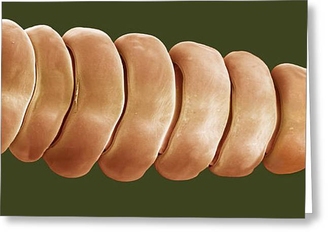 Scanning Electron Microscope Greeting Cards - Rattlesnake Rattle, Sem Greeting Card by Steve Gschmeissner