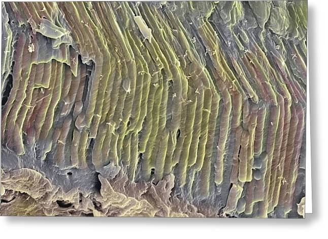 Freeze-fracture Greeting Cards - Retina Rod Cells, Sem Greeting Card by Steve Gschmeissner
