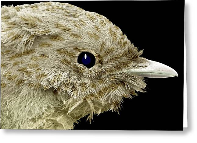 Scanning Electron Micrograph Greeting Cards - Robin Chick, Sem Greeting Card by Steve Gschmeissner