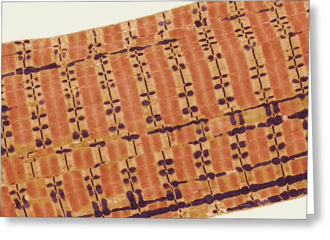 Transmission Electron Microscope Greeting Cards - Skeletal Muscle, Tem Greeting Card by Steve Gschmeissner