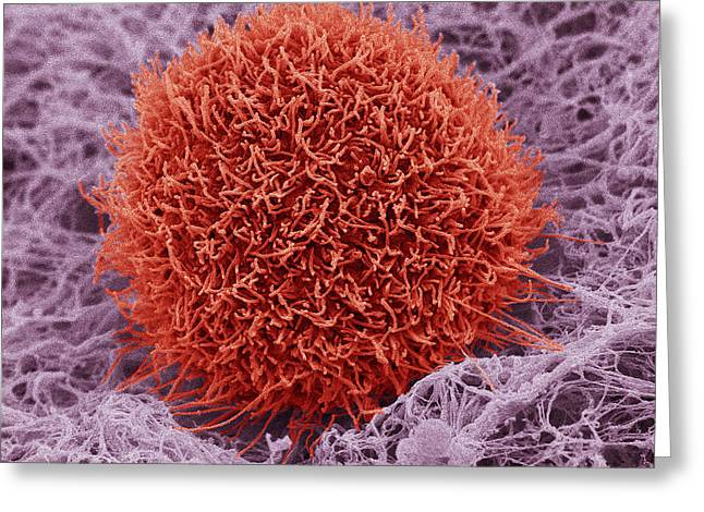 Squamous Greeting Cards - Skin Cancer Cell, Sem Greeting Card by Steve Gschmeissner