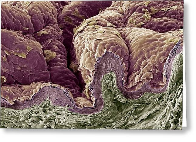 Freeze-fracture Greeting Cards - Skin Tissue, Sem Greeting Card by Steve Gschmeissner