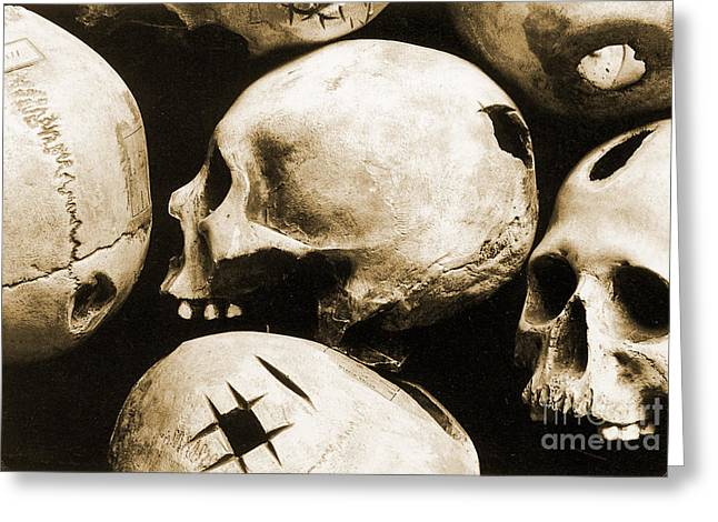 Brain Surgery Greeting Cards - Skulls Showing Trepanation Greeting Card by Science Source