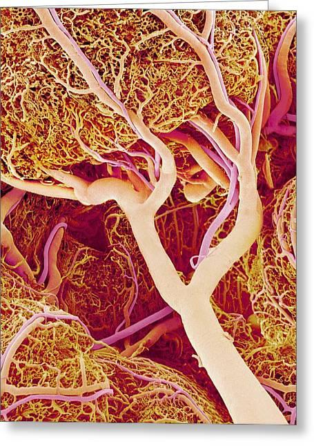 Arteriole Greeting Cards - Small Intestine Blood Vessels, Sem Greeting Card by Susumu Nishinaga