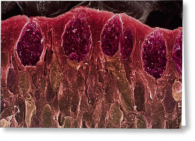 Goblet Greeting Cards - Small Intestine Villus, Sem Greeting Card by Steve Gschmeissner