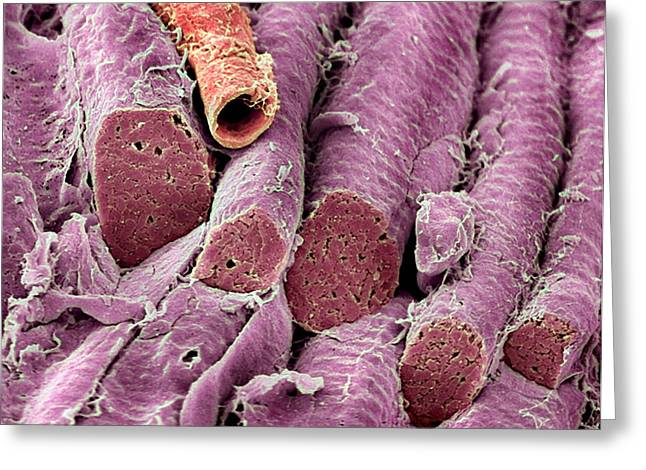 Sem Greeting Cards - Smooth Muscle, Sem Greeting Card by Steve Gschmeissner