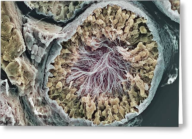 Testis Greeting Cards - Sperm Production Site, Sem Greeting Card by Steve Gschmeissner