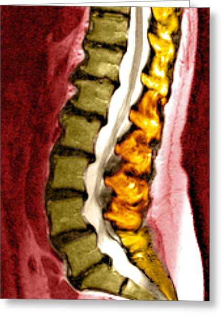 Disorder Greeting Cards - Spine Degeneration, Mri Scan Greeting Card by Du Cane Medical Imaging Ltd