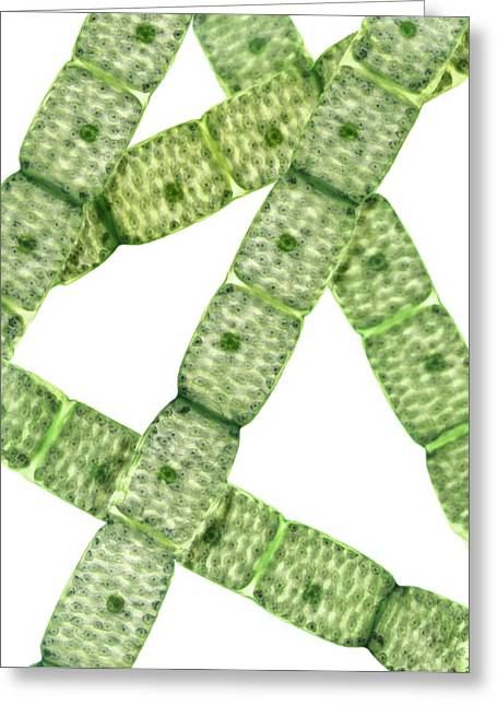Algal Greeting Cards - Spirogyra Algae, Light Micrograph Greeting Card by Steve Gschmeissner