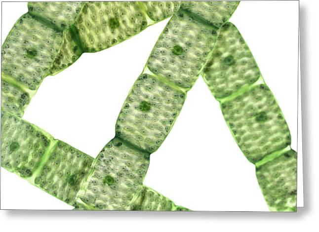 Spirogyra Algae, Light Micrograph Greeting Card by Steve Gschmeissner