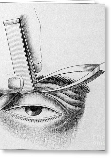 Eyelids Greeting Cards - Surgery To Correct Lazy Upper Eyelid Greeting Card by Science Source