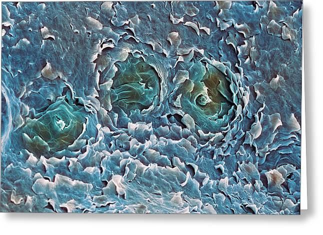 Sweat Greeting Cards - Sweat Glands, Sem Greeting Card by Steve Gschmeissner