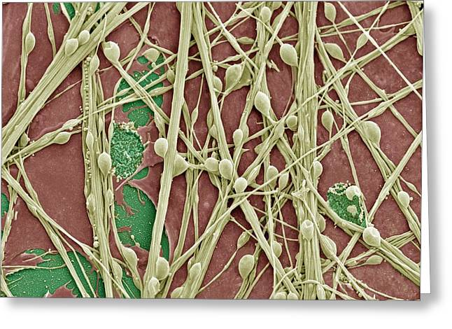 Relaying Greeting Cards - Synapse Nerve Junctions, Sem Greeting Card by Thomas Deerinck, Ncmir