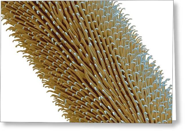 Mechanism Greeting Cards - Tarantula Hair, Sem Greeting Card by Steve Gschmeissner