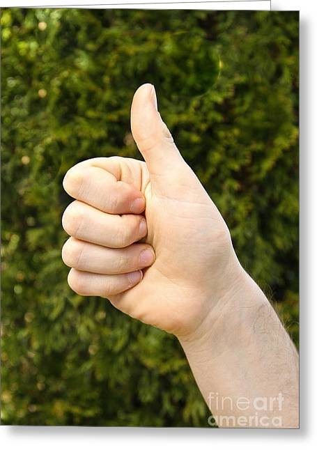 Thumbs Up Greeting Cards - Thumbs Up Greeting Card by Photo Researchers, Inc.