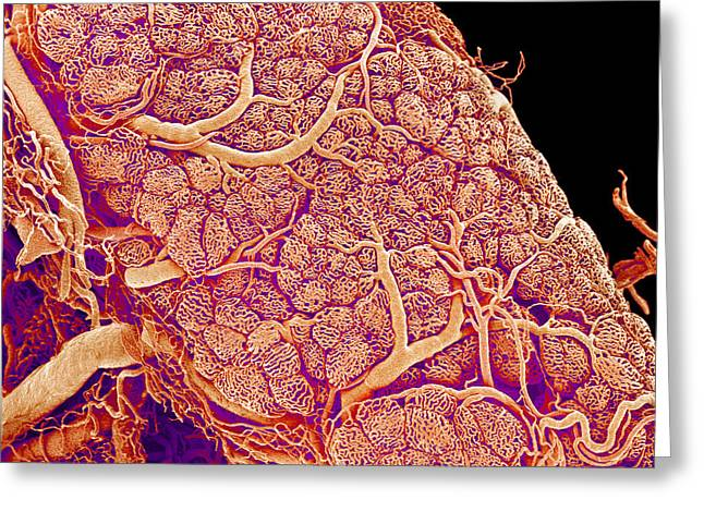 Scanning Electron Micrograph Greeting Cards - Thyroid Gland Blood Vessels, Sem Greeting Card by Susumu Nishinaga