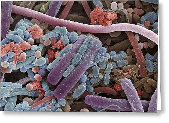 Micro-organism Greeting Cards - Tongue Bacteria, Sem Greeting Card by Steve Gschmeissner