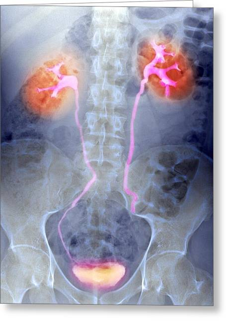 Urinary System, X-ray Greeting Card by Du Cane Medical Imaging Ltd