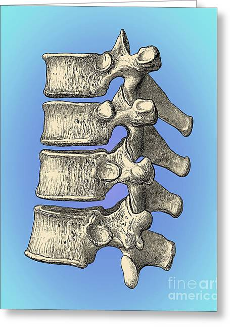 Quartet Photographs Greeting Cards - Vertebrae Greeting Card by Science Source
