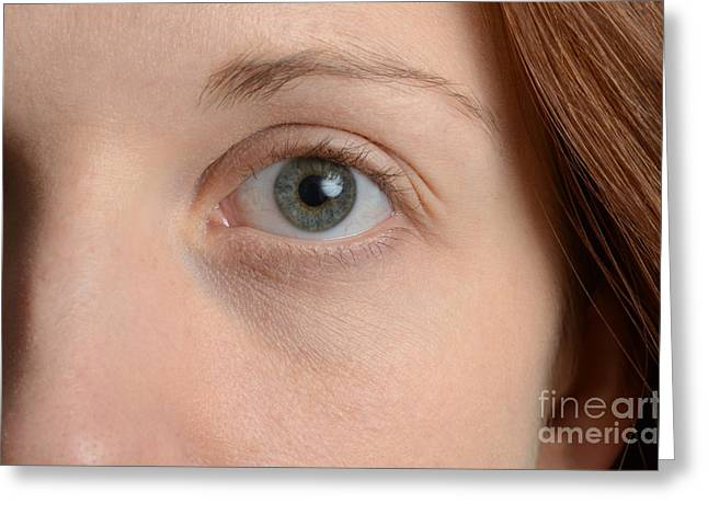 Eyebrow Greeting Cards - Womans Eye Greeting Card by Photo Researchers, Inc.