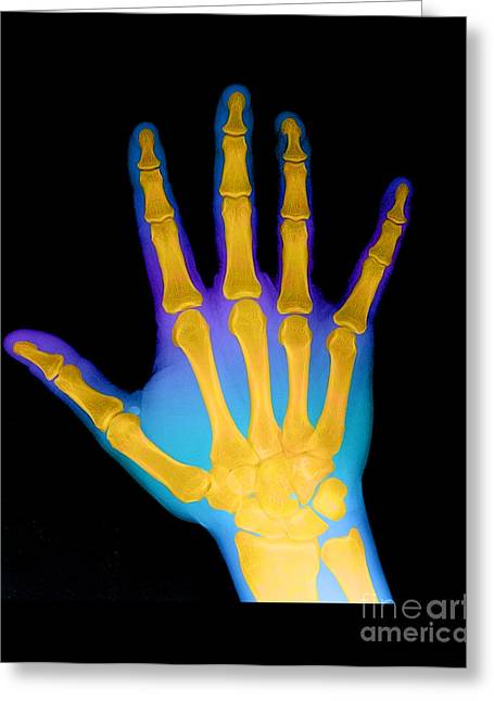 Medical Medical Imaging Greeting Cards - X-ray Of A Hand Greeting Card by Medical Body Scans
