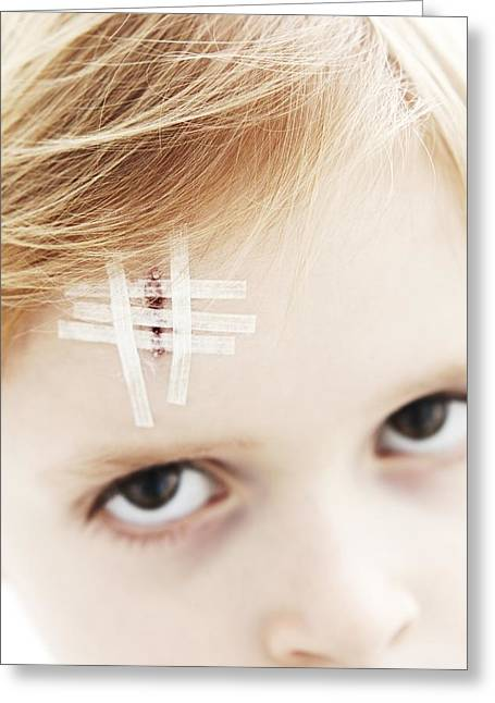Forehead Greeting Cards - Young Boy With Head Wound Greeting Card by Ian Boddy