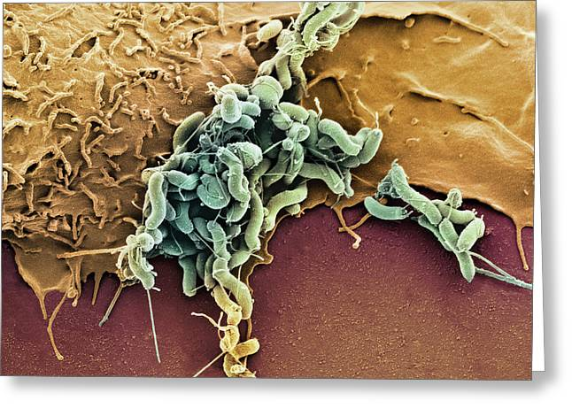 Campylobacter Pyloridis Greeting Cards - Helicobacter Pylori Bacteria, Sem Greeting Card by