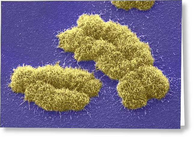Duplication Greeting Cards - Human Chromosomes, Sem Greeting Card by Power And Syred