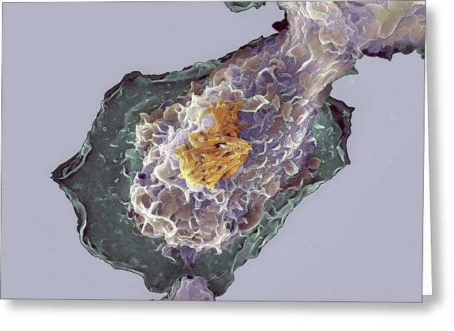 False-colour Greeting Cards - Bacteria Infecting A Macrophage, Sem Greeting Card by