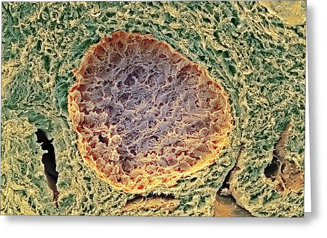 Coloured Greeting Cards - Ovarian Follicle, Sem Greeting Card by Steve Gschmeissner
