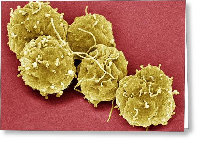 Coloured Greeting Cards - Embryonic Stem Cells, Sem Greeting Card by Steve Gschmeissner