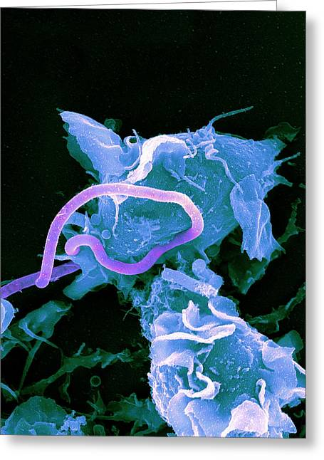 Terrorism Greeting Cards - Bacteria Infecting A Macrophage, Sem Greeting Card by