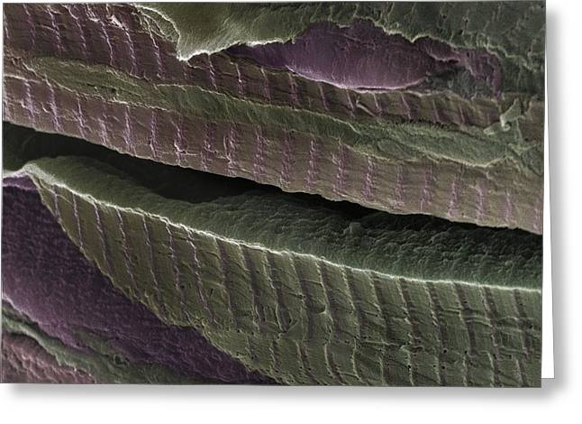 Transverse Tubules Greeting Cards - Cardiac Muscle, Sem Greeting Card by Steve Gschmeissner