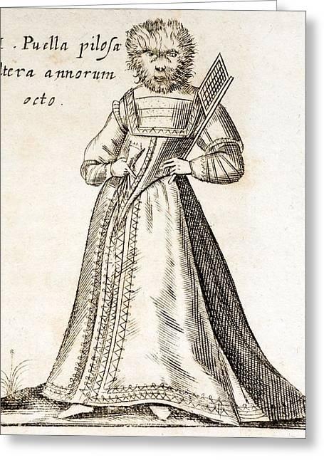 Gonzalez Greeting Cards - 1662 Schott Hairy Faced Girl Genetic Greeting Card by Paul D Stewart