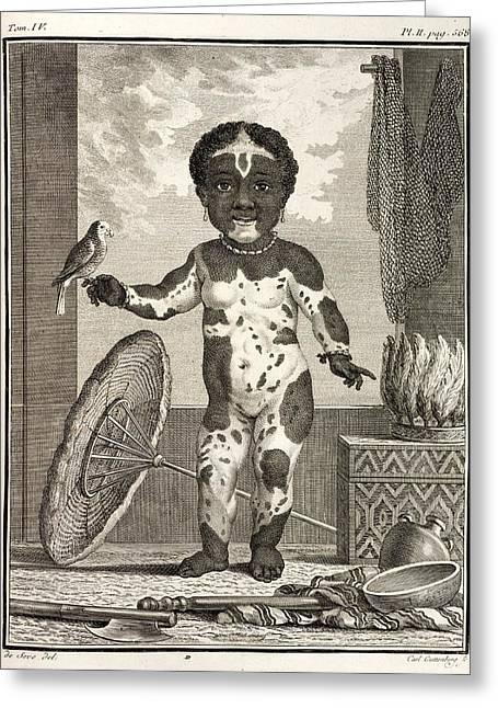 18th Century Greeting Cards - 1777 African American Vitiligo Buffon. Greeting Card by Paul D Stewart