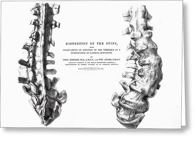 Gideon Greeting Cards - 1852 Gideon Mantell Fused Spine Composite Greeting Card by Paul D Stewart