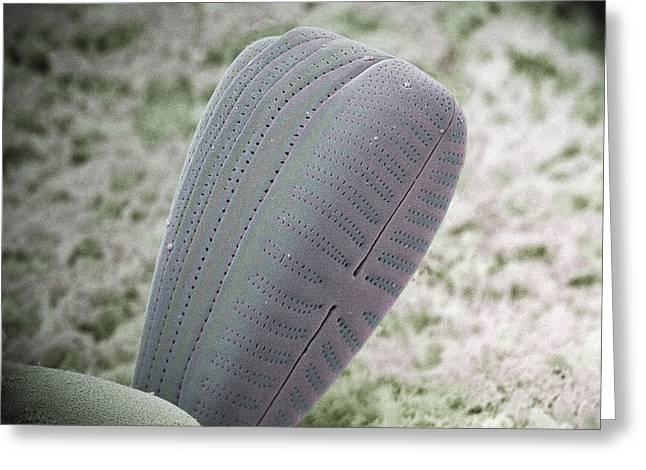 Algal Greeting Cards - Diatom Alga, Sem Greeting Card by Steve Gschmeissner